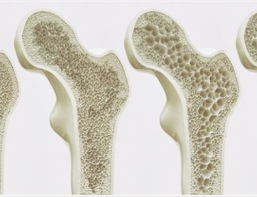 MONOTHERAPY?: Osteoporosis and Osteopenia